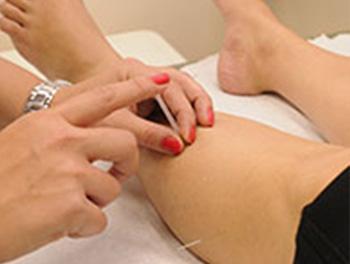 akupunktur på ben